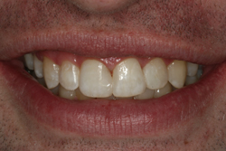 Tooth Bonding & Composite After